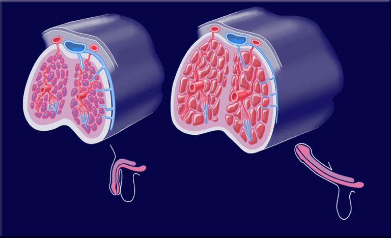 próstata vascular oclusiva