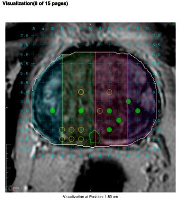 biopsia romántica de fusión de próstata