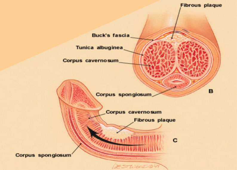 Enfermedad-de-la-Peyronie-o-curvatura-del-pene