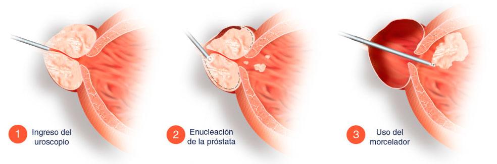 Hiperplasia-Benigna-de-próstata