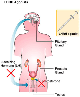 Cancer de prostata bloqueo hormonal, Cu prostata pe care antibioticele o lovesc