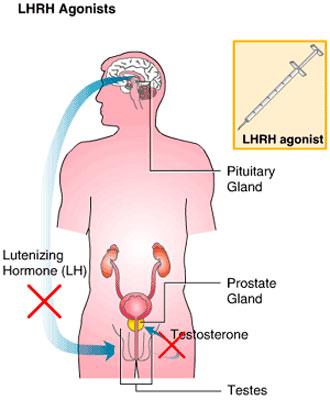 cancer-de-próstata-tratatamiento-hormonal