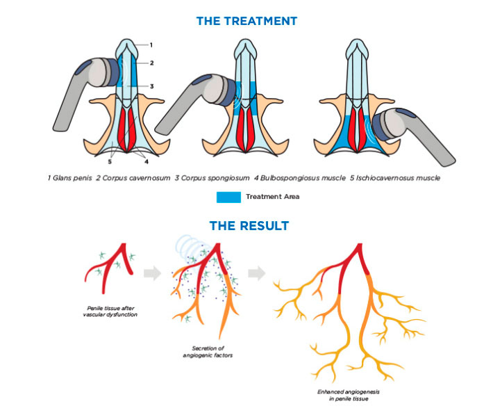 Disfunción-Erectil, Tratamiento con Ondas de Choque para el Pene