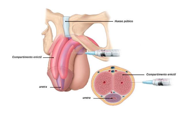 Disfunción-Erectil Inyección De Fármacos Intracavernosos- Fármacos Intrauretrales