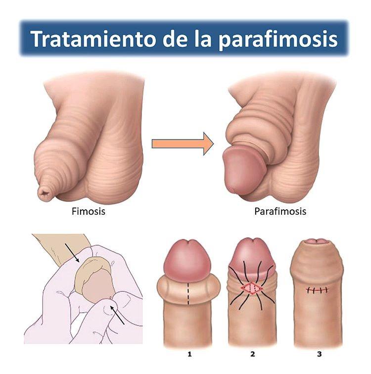 el pene erecto no sale del glande