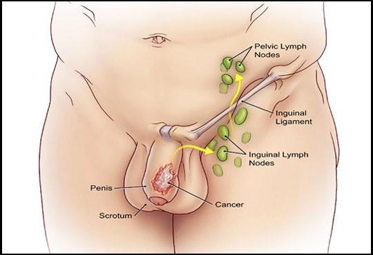 sin infección, agrandamiento de la próstata pero estenosis en el glande