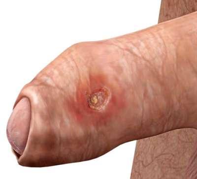 balanitis causada por prostatitis