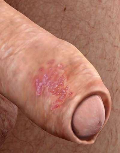 tratamiento papilomatosis venerea