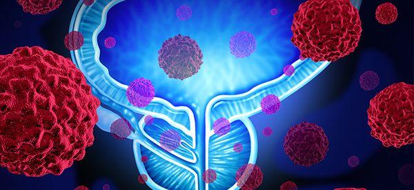 tratamiento de selenio y cáncer de próstata