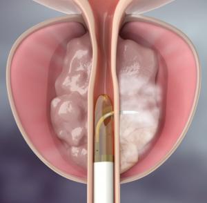 Vídeo Terapia térmica con vapor de agua para hiperplasia benigna de próstata – REZUM
